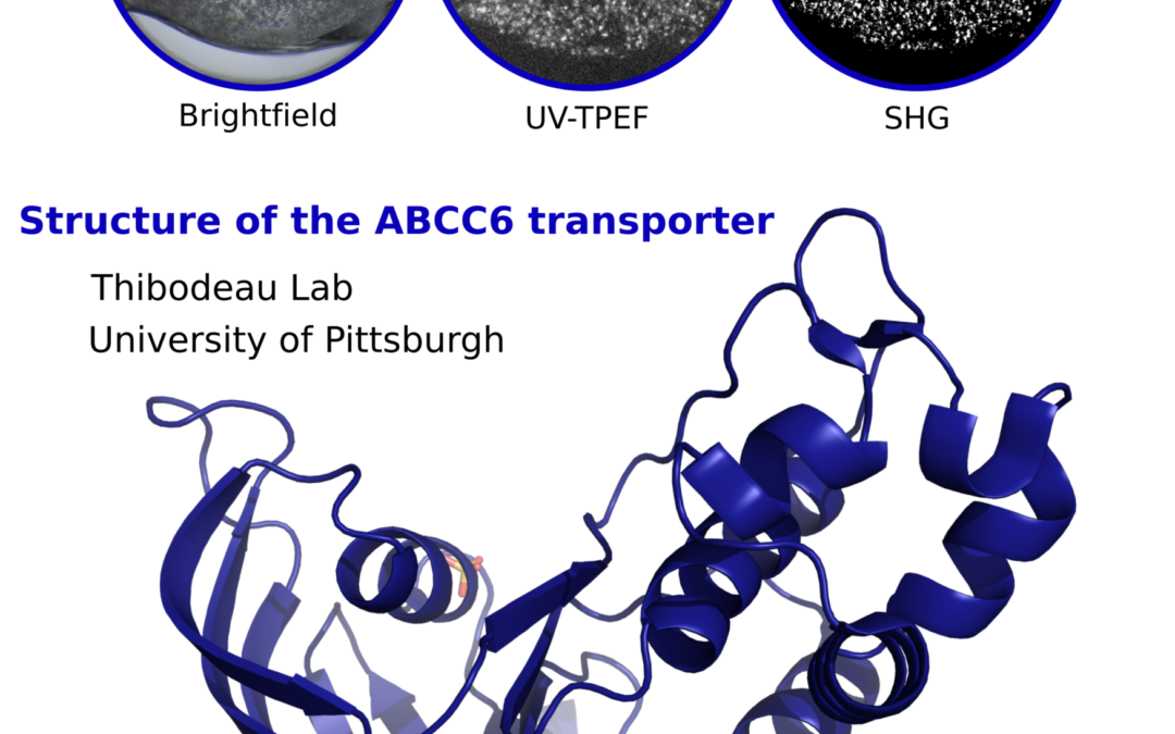 Structural analysis reveals pathomechanisms associated with pseudoxanthoma elasticum-causing mutations in the ABCC6 transporter